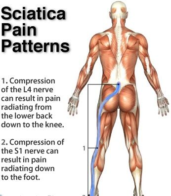 yoga & sciatica |, Skeleton